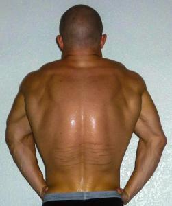 back_spread_alex